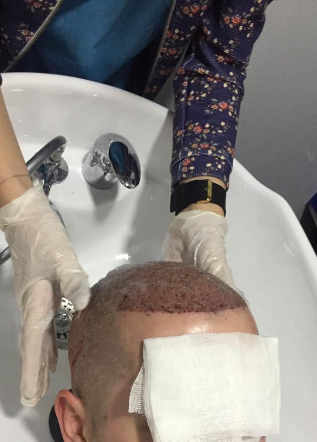 saç ekimi sonrası yıkama
