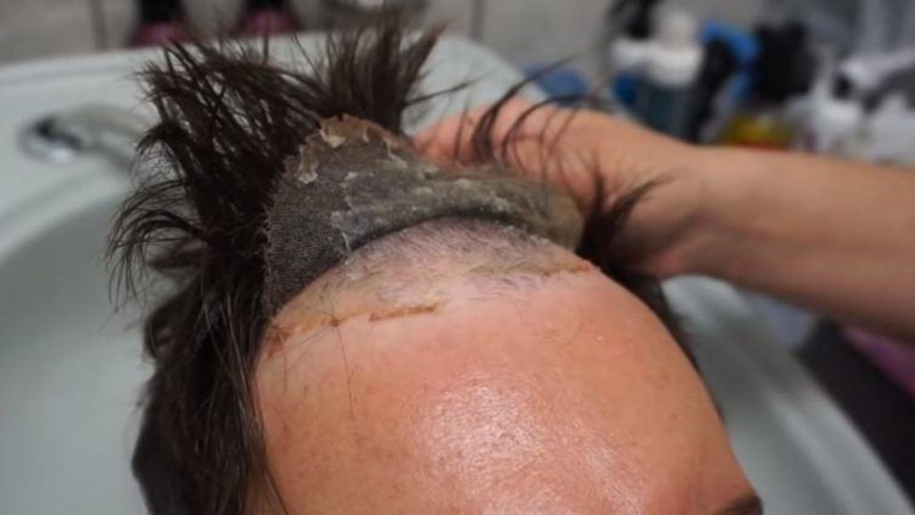 Saç Protezi Uygulaması