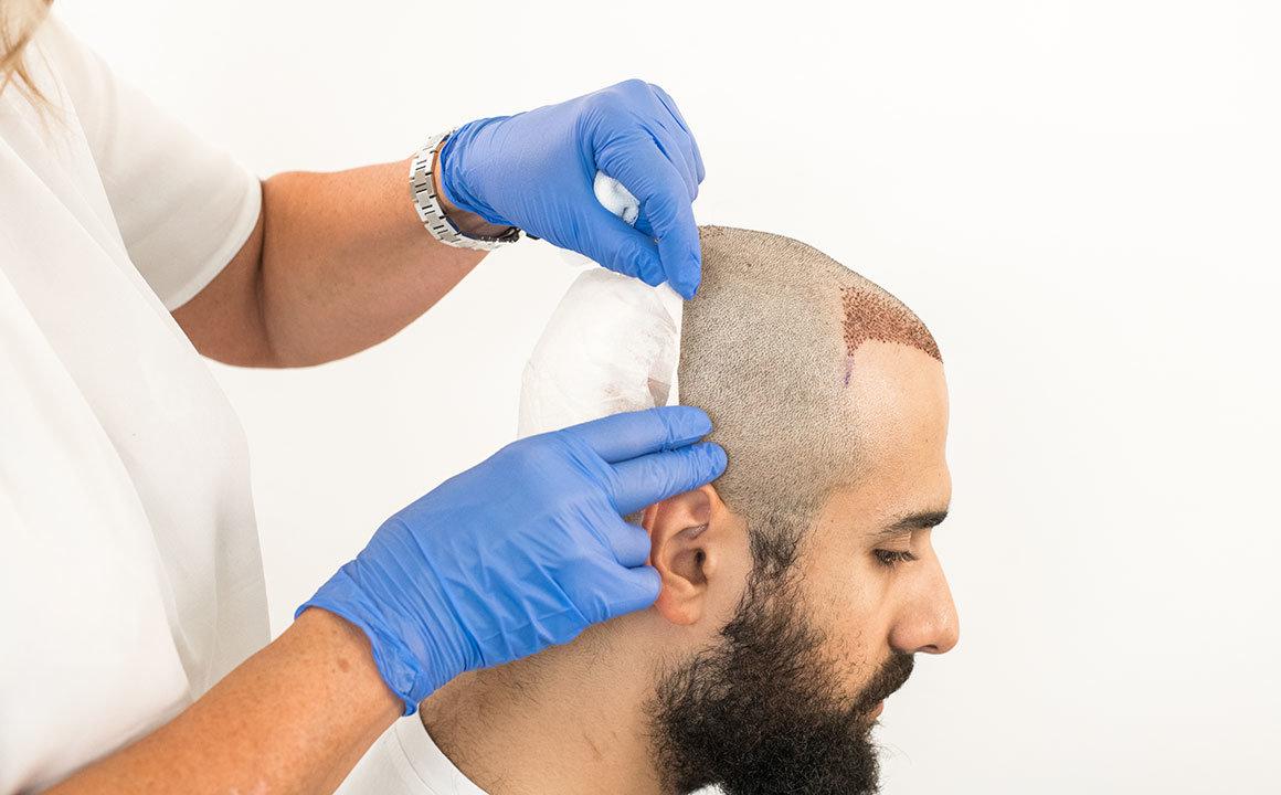 saç ekimi sonrası bandaj çıkarma