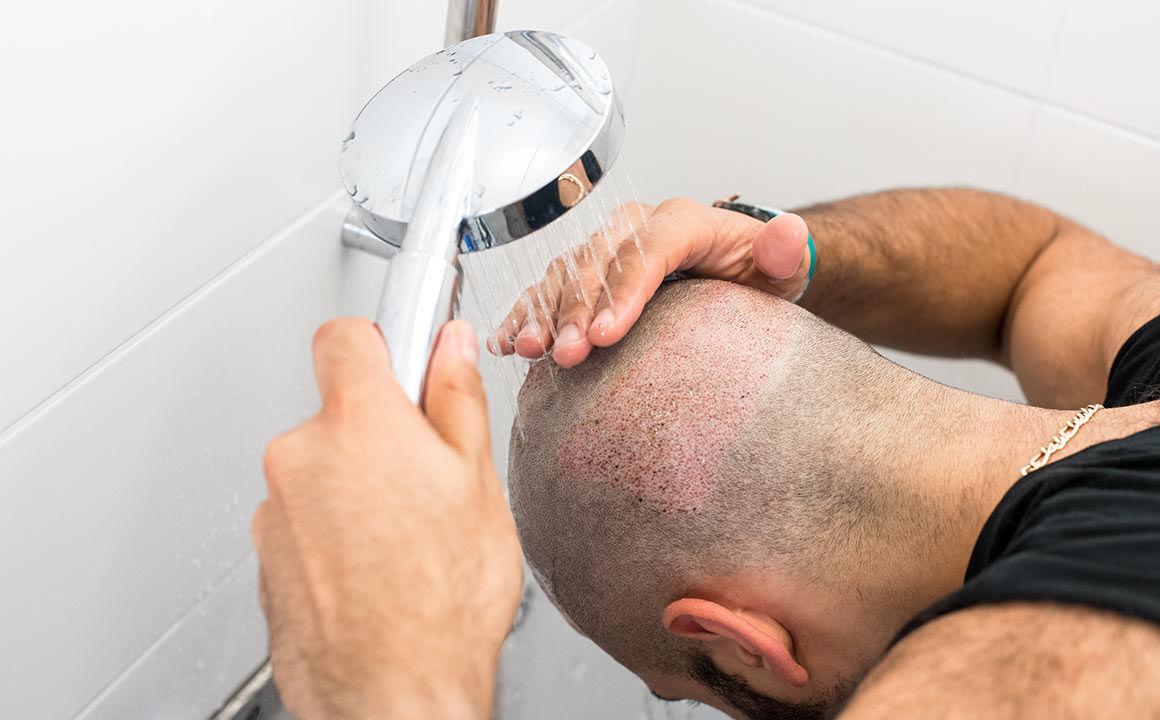 saç ekimi sonrası kabuklanma nasıl temizlenir