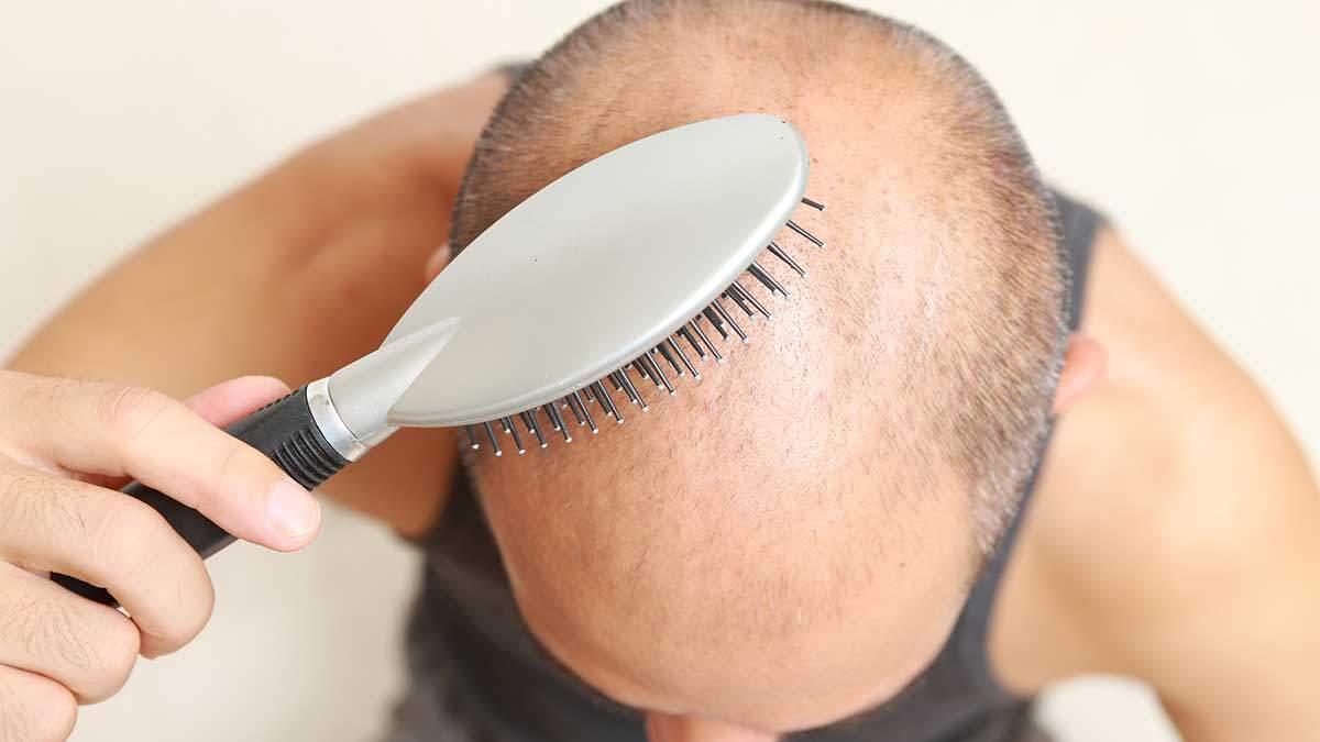 saç ekimi ölüm riski